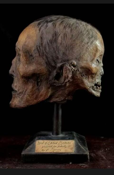 [কনটেন্ট 4] Edward mordrake – THE TWO-FACED MAN