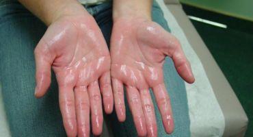 হাত ঘামা রোগ ভালো করার ৬ টি উপায় । হাইপারহাইড্রোসিস । 6 Ways To Cure Hand Sweating Disease