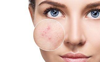 মুখের ব্রণ স্থায়ী ভাবে দূর করুন (ছেলে ও মেয়ে উভয় ) । এর উপর আর কোন ঔষধ নেই ।  Remove Acne And Oily Skin
